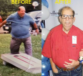 Frank Levenia before and after photo